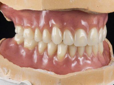 Prothèse provisoire en prothèse conjointe