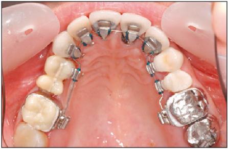 Introduction à la chirurgie parodontale