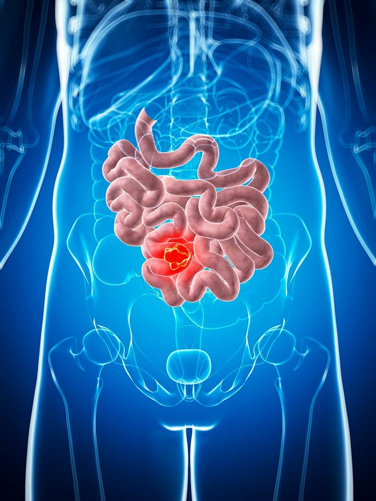 ischémie intestinale