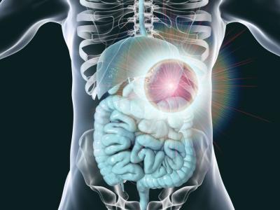 Les tumeurs de L'estomac
